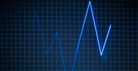 A picture of Electrocardiogram